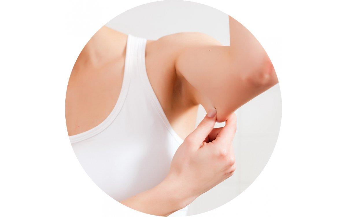 Как не допустить обвисание кожи после похудения
